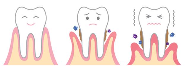 Gum Disease Treatment in Brenham